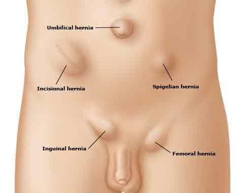 hernia and things you should know