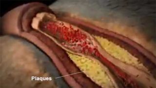 Plaque can stay around the arteries
